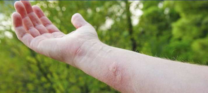 Don't let the bugs bite… But when you're bit, this is what you should do.