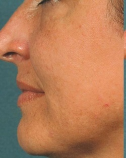 Patient with Photodamaged Skin (Before Treatment)