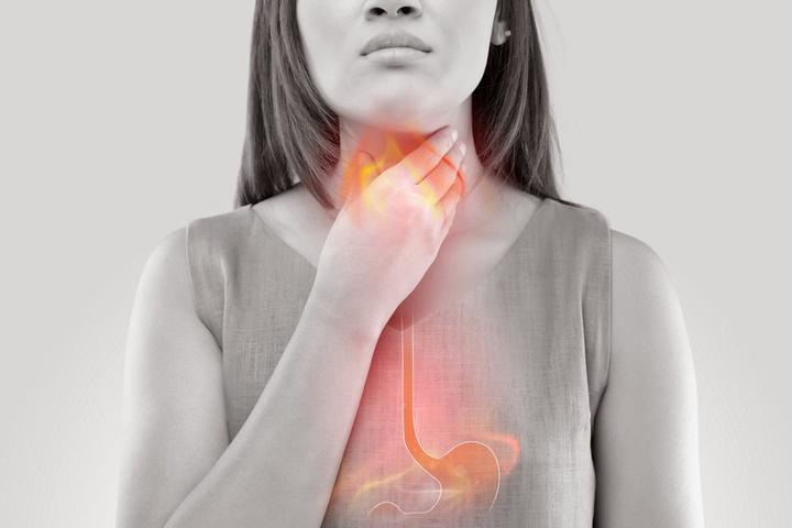 A Holistic Approach to Heartburn, Acid Reflux & GERD