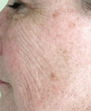 Patient with Wrinkles (Before Treatment)