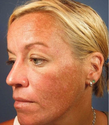 Patient with Rosacea (Before Treatment)