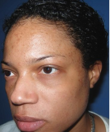 Patient with Oily Skin (Before Treatment)